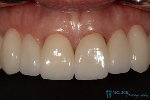 Maxillary and Mandibular Anterior Teeth Retracted View