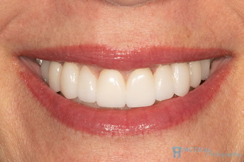 Frontal View Full Smile