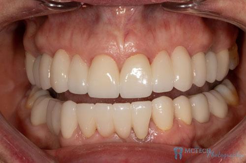 Maxillary and Mandibular Teeth Retracted View