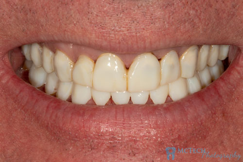 Dental Lab Image 1