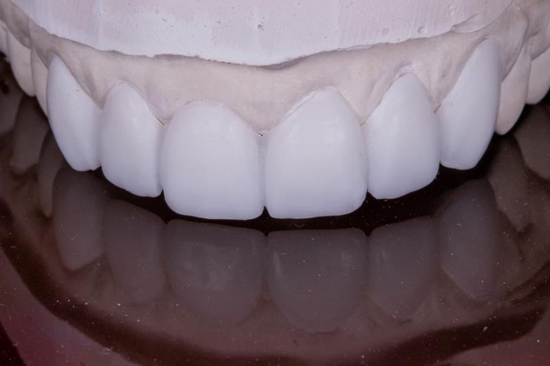 Dental Lab Aesthetic Case - Nathan