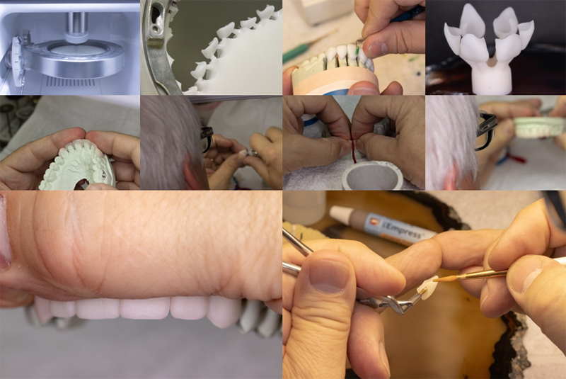Dental Lab Case Studay - Aesthetic
