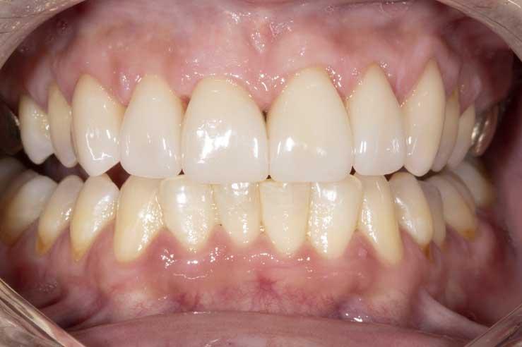 Aesthetic Dental Case