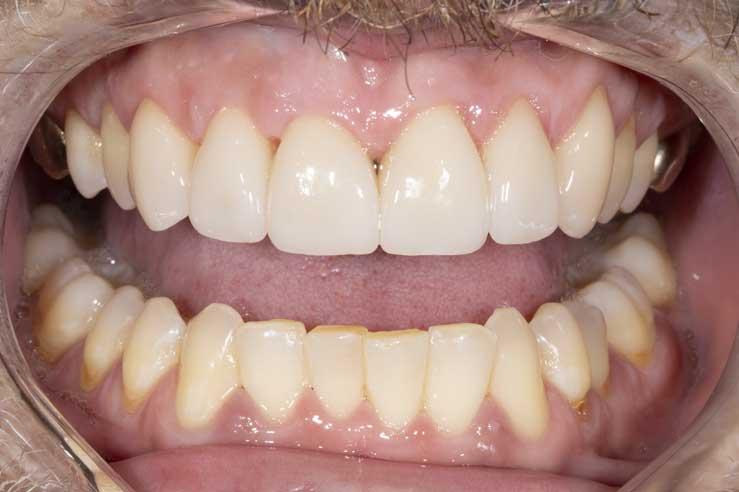 Aesthetic Dental Lab