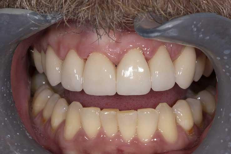 Aesthetic Dental